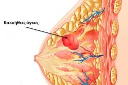 Συχνότητα Καρκίνου του Μαστού